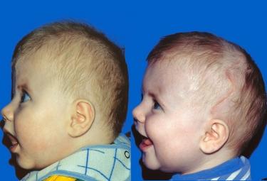 Bicoronal Craniosynostosis