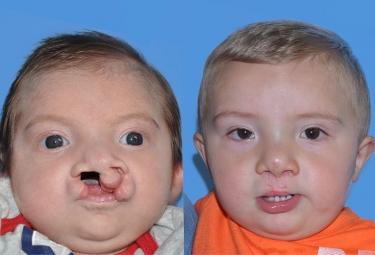 bilateral-cleft-lip-01