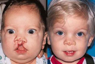bilateral-cleft-lip-05