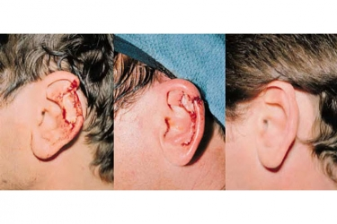 Traumatic-Ear-Deformities_p1
