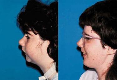 hemifacial-deformities_p1b