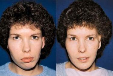 hemifacial-deformities_p2