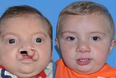 latham-nasalmolding-02