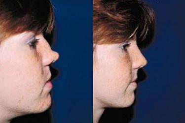 nasal-reconstruction-01