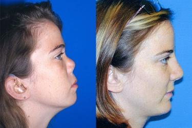 nasal-reconstruction-02b