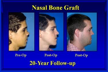 nasal-reconstruction-03