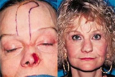 nasal-reconstruction-04