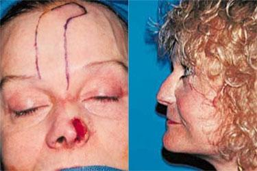 nasal-reconstruction-05