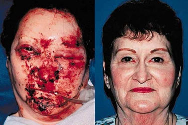 nasoethmoid-fractures-02