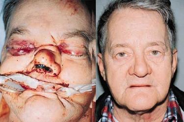 nasoethmoid-fractures-03