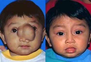 Nasal-Encephalocele-p3