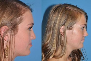 orthognathic-surgery-p01