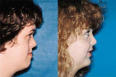 orthognathic-surgery-p02