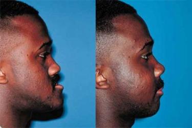 orthognathic-surgery-p03