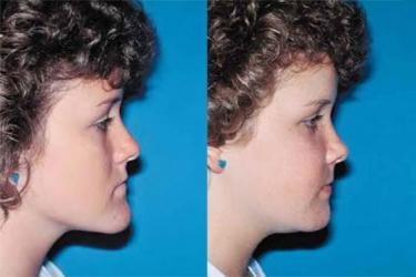 orthognathic-surgery-p04