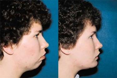 orthognathic-surgery-p05