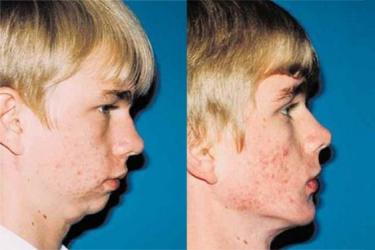 orthognathic-surgery-p06