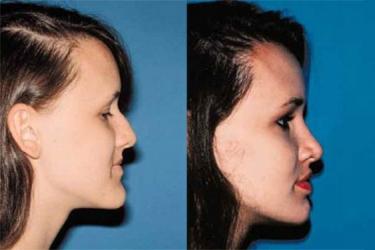 orthognathic-surgery-p08