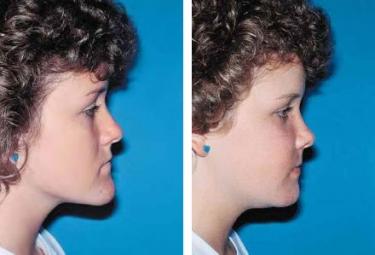 OrthognathicSurgery-03