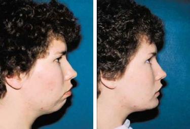 OrthognathicSurgery-04