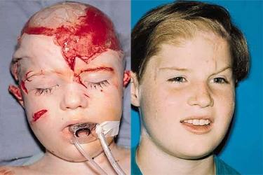 soft-tissue-deformities-01