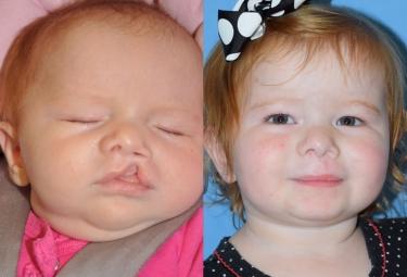 unilateral-cleft-lip-repair-04