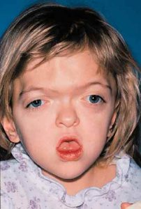Apert Syndrome 7