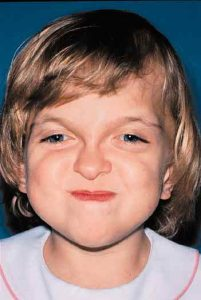 Apert Syndrome 8